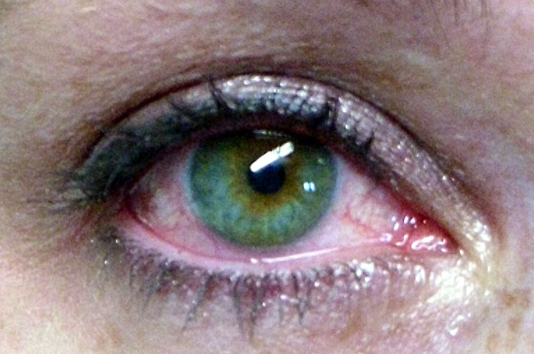 دموع العيون 1