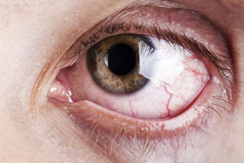 عيون تدمع 1